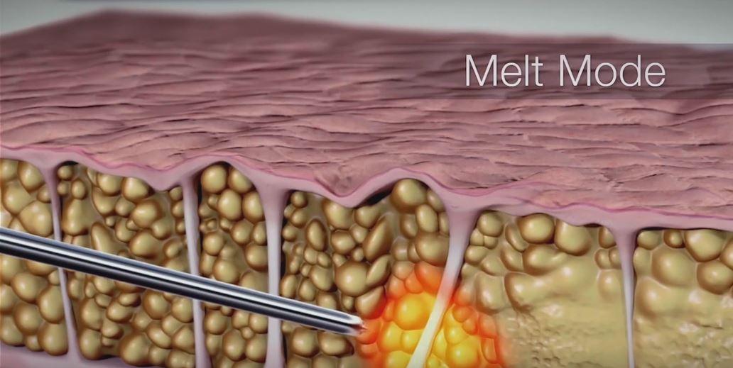 CelluSmooth – przełom w zwalczaniu cellulitu